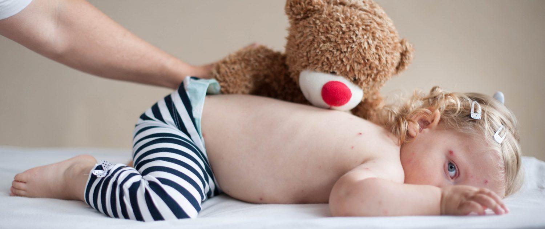 Ein Mädchen mit Windpocken liegt auf dem Bauch mit Teddy auf ihr.