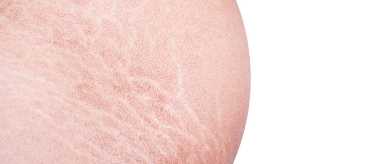 Macro stretch marks of skin on the belly isolated