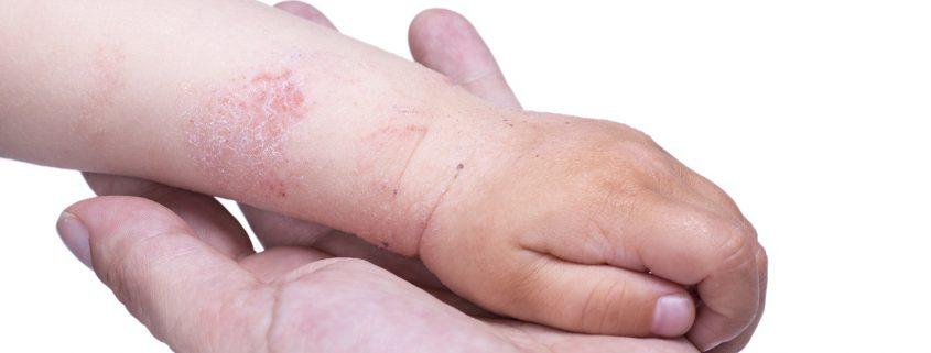 Neurodermitis an der Hand.