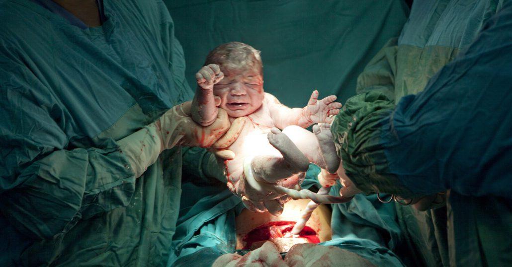 Geburt durch Kaiserschnitt