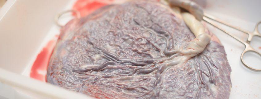 Plazenta nach der Geburt
