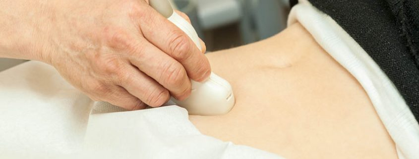 Frau hat eine Ultraschall untersuchung am Bauch