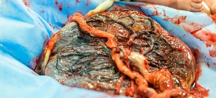 Placenta hängt am Baby